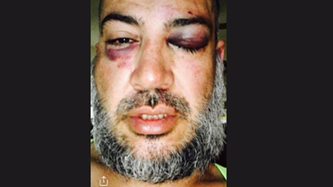 Lawsuit Claims TCSO Deputies Ambushed Innocent Man - Valley